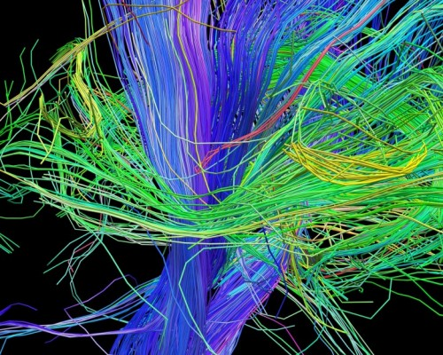 Computer visualisation of white matter structures in the brain - courtesy of Human Connectome project